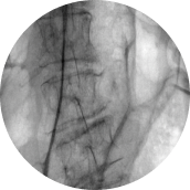 x-ray view of spine